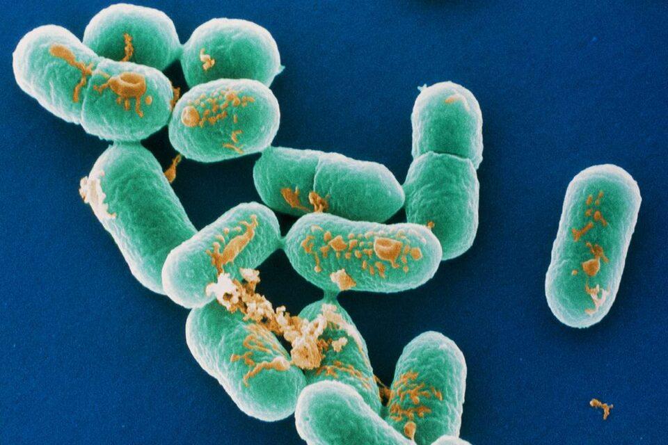 Listeria, l'infezione del salmone affumicato causa cinque morti